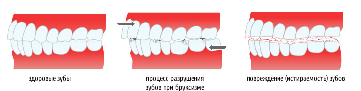 Каппа от бруксизма в стоматологии Москвы