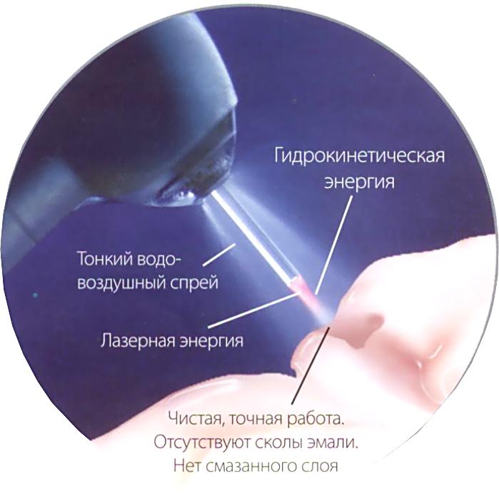 терапия лазерной стоматологии