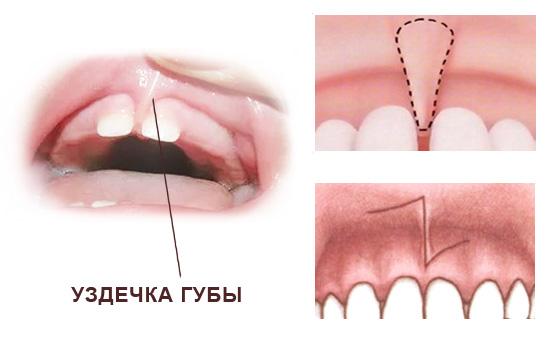 Лазерная коррекция уздечек губ