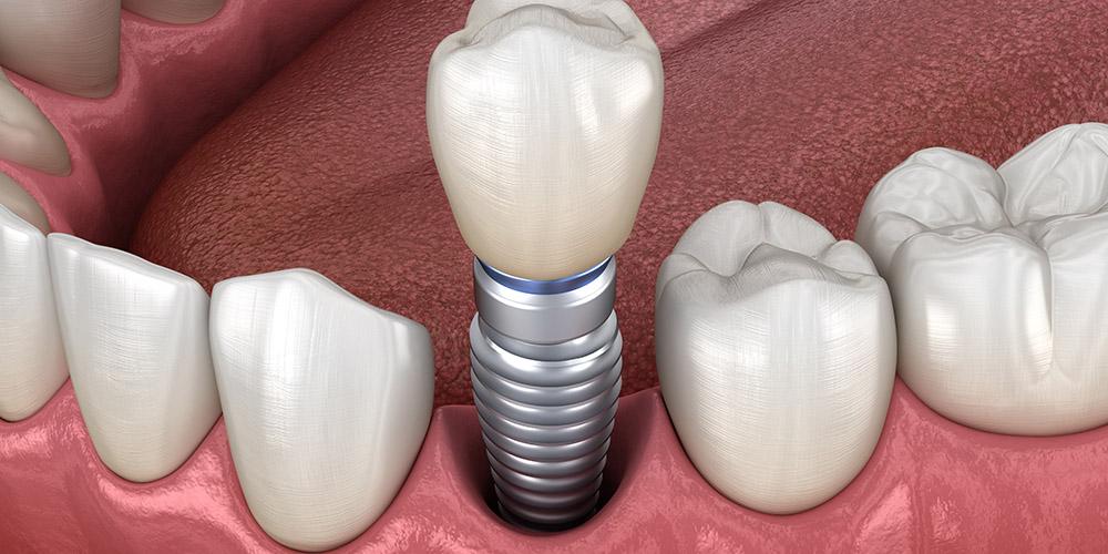 Металлокерамическая коронка на имплантат