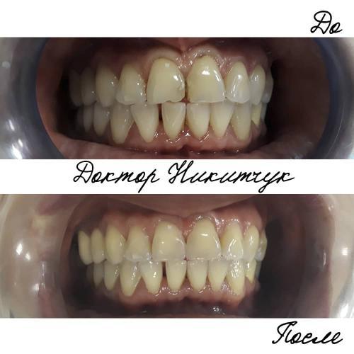 Кариес дентина зубов
