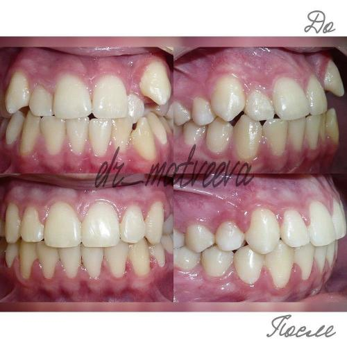 В данном случае у пациента имеет место быть прямое соотношение в переднем отделе, обратное (небное) положение бокового резва верхней челюсти, супра положение клыка верхней челюсти слева, скученность зубов верхней и нижней челюсти. Результатом лечения стало: расширение зубных дуг, устранение скученности на верхней и нижней челюсти, получение эстетичной улыбки.