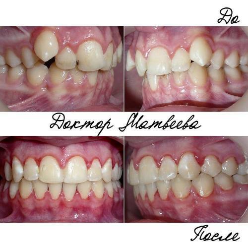 Проблему неправильного положения клыков нам решить удалось, а вот с гигиеной мы так и не справились. Покраснение (гиперемия) слизистой и белые пятна на эмали являются как раз результатом скопления налёта вокруг брекетов.Чистите зубы, дорогие пациенты!
