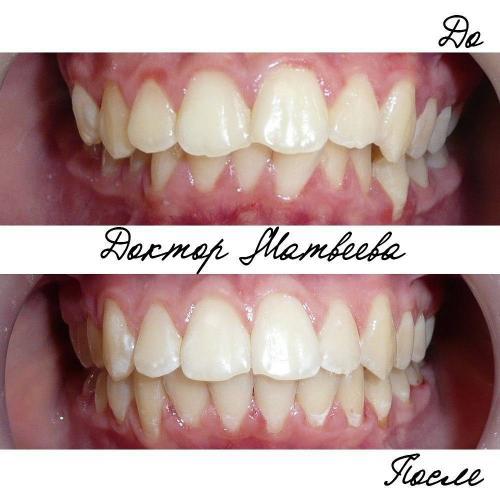Зачастую неправильный прикус приводит к сколам или стираемости режущих краев передних зубов.Особенно заметно это становится после выравнивания. В таких случаях после лечения пациенту необходимо произвести пришлифовку режущих краев, если дефект небольшой, или терапевтическое восстановление с помощью пломбы или винира. Что и ждет эту пациентку Лечение длилось 1год и 9 месяцев. Мне удалось восстановить среднюю линию и устранить перекрестную окклюзию справа, конечно не без помощи пациентки.