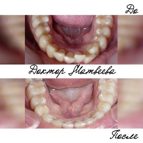 После исправления скученности зубов на нижней челюсти как правило устанавливается несъемный ретейнер. Он удерживает зубы в правильном положении и препятствует их смещению в дальнейшем.