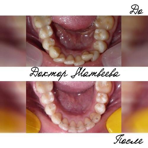 Проблема неправильного положения зубов на нижней челюсти имеет широкую распространенность.Скученность затрудняет гигиену и впоследствии приводит к появлению проблем с деснами, развитию пародонтита и иногда даже удалению.Рекомендую своевременно обратить внимание на состояние Ваших зубов. Тем более, что с возрастом экспозиция нижних зубов при разговоре и улыбке увеличивается.