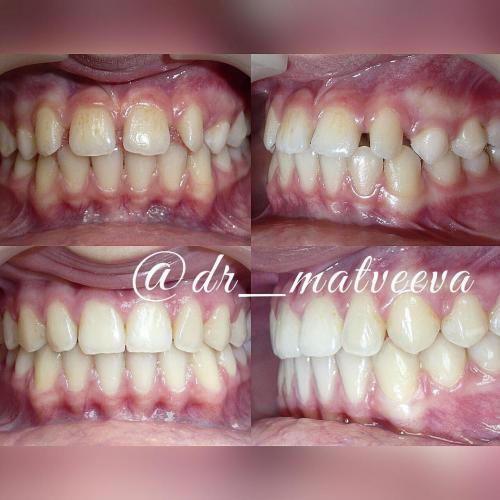 Закрытие тремы между зубами.