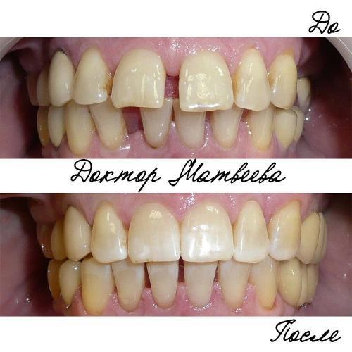 В результате лечения полностью устранены промежутки между зубами на верхней челюсти и частично на нижней челюсти. Планируется протезирование справа. Пациентке 65 (!) лет.