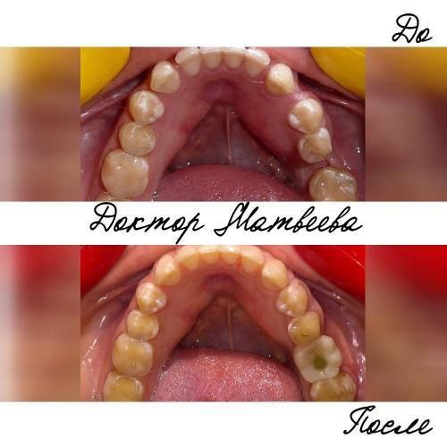 В случае, когда необходима подготовка к имплантации или протезированию, но пациент не готов пройти полное ортодонтическое лечение, возможно применение сегментной техники. В результате лечения создано место для имплантации и последующего протезирования зуба 3.6, устранены промежутки в области соседних зубов. Коронка на последней фотографии временная, вскоре она будет заменена более эстетичной постоянной.