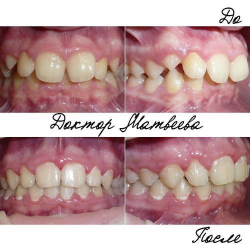 Пациенту не нравилась щель между передними зубами. Но еще на первой консультации я объяснила, что это связано с боковиной формой резцов и для получения максимально эстетического результата необходимо изготовление виниров, но прибегнув только к ортодонтическому лечению можно заметно улучшить ситуацию.В результате лечения удалось повысить высоту прикуса, добиться правильного соотношения зубов в боком отделе, улучшить соотношение средних линий.