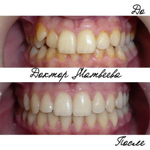 Улучшено положение клыка верхней челюсти справа, устранена скученность верхнего и нижнего зубных рядов, восстановлена средняя линия.