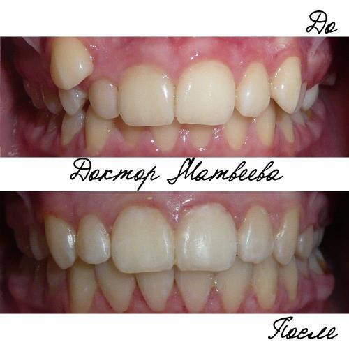 В результате лечения улучшено положение верхнего правого клыка, исправлена скученность нижних фронтальных зубов, восстановлена средняя линия, устранено глубокое резцовое перекрытие.
