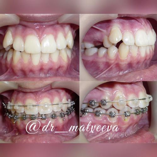 Молочный зуб задержался в зубном ряду и из-за этого не хватило места постоянному клыку справа (некоторые молочные зубы крупнее постоянных).Мы его удалили, создали место для клыка и вот мы на финишной прямой. После лечения будут зафиксированы несъёмный ретейнер на нижний зубной ряд и изготовлена капа на верхний. Продолжительность лечения 1год 2 месяца В процессе лечения была использована комбинированная брекет-система Damon Clear+Damon Q