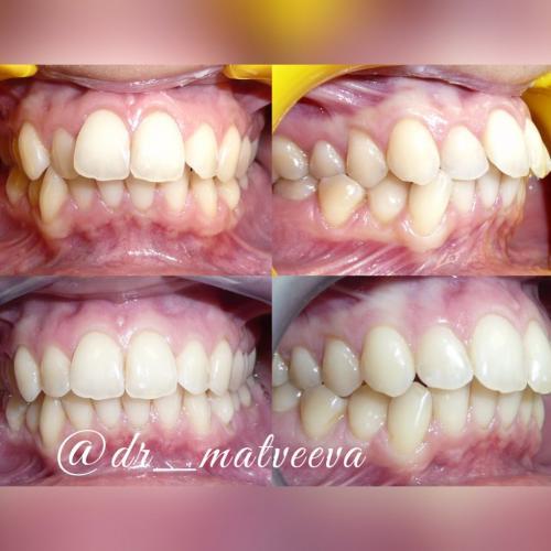 Лечение проводится на системе прозрачных кап Invisalign. Фотографии сделаны на этапе лечения. Но этот результат получен всего за 7,5 месяцев (15 кап)