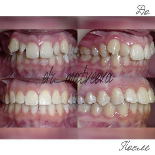 Пациентка обратилась с жалобами на неровные зубы на верхней челюсти и непривлекательную улыбку. В результате лечения расширен верхний и нижний зубные ряды, выровнены зубы, исправлен прикус, создана привлекательная гармоничная улыбка.